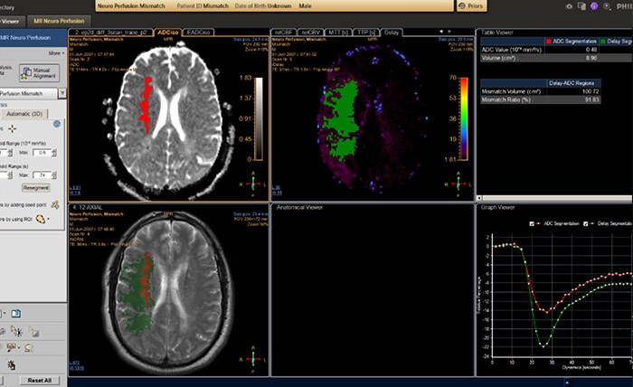 MR T2* Neuro Perfusion