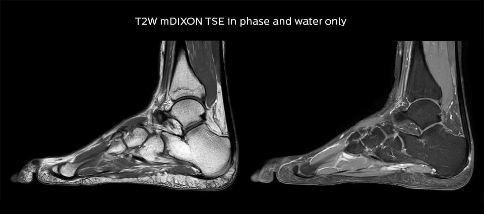 Мрт тазобедренного сустава site by где вылечить суставы в харкове