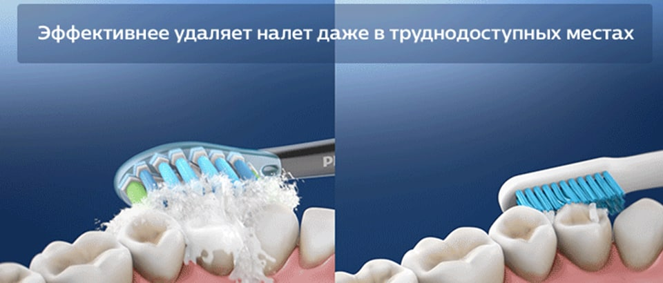 Технология Philips Sonicare лучше